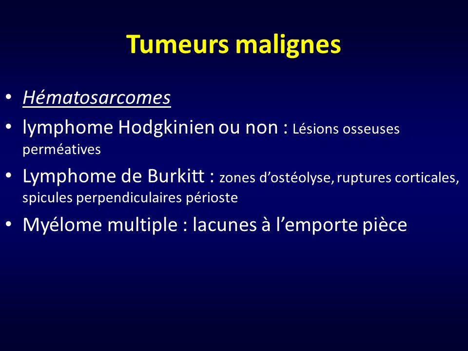 Tumeurs malignes Hématosarcomes