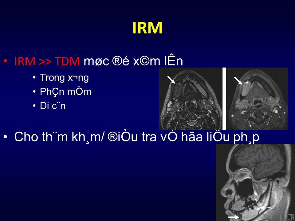 IRM IRM >> TDM møc ®é x©m lÊn