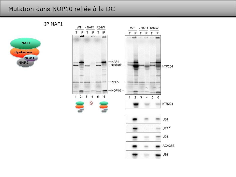 Mutation dans NOP10 reliée à la DC