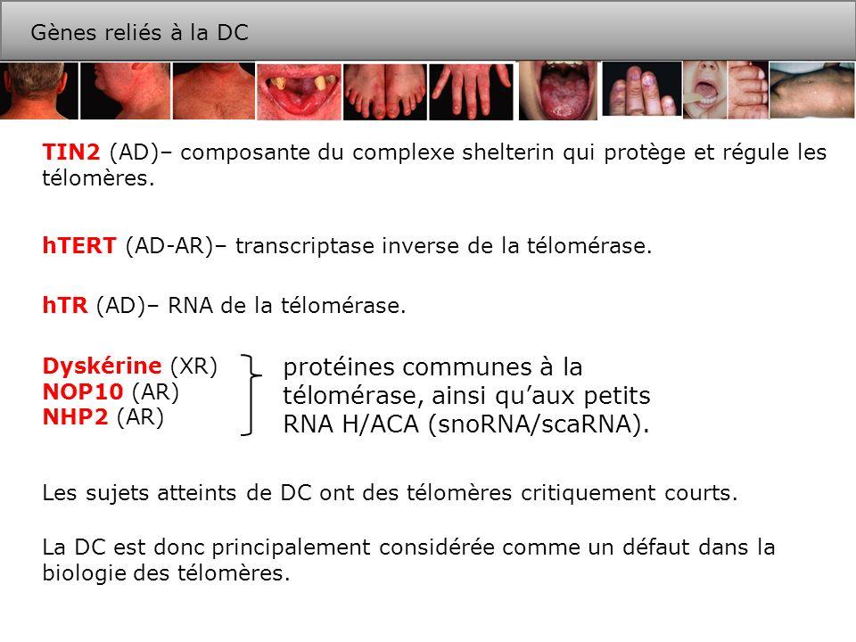Gènes reliés à la DCTIN2 (AD)– composante du complexe shelterin qui protège et régule les télomères.
