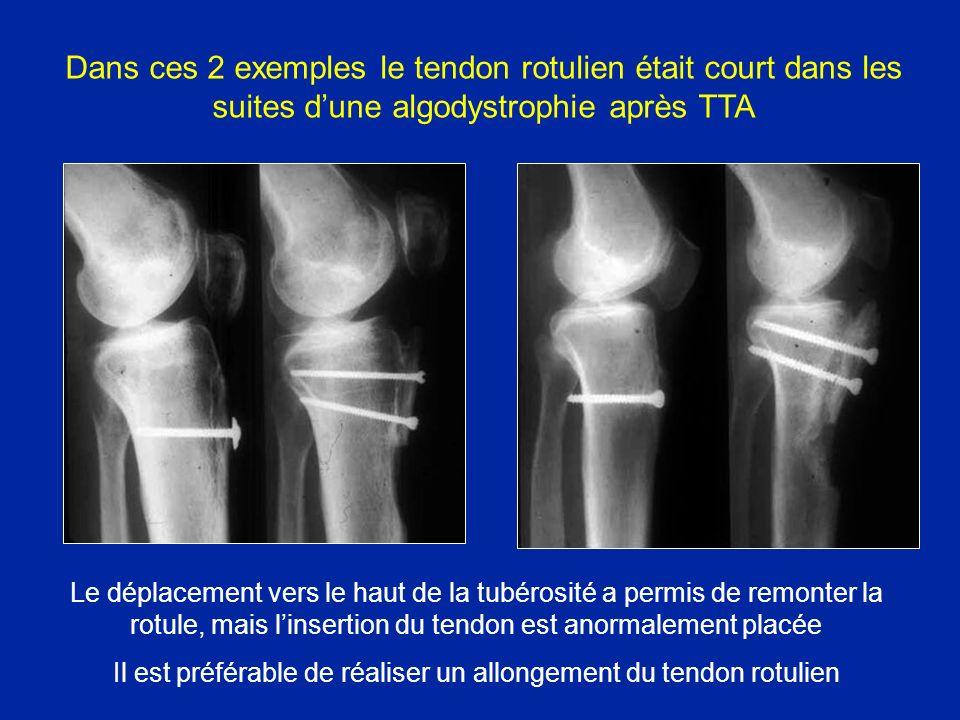 Il est préférable de réaliser un allongement du tendon rotulien