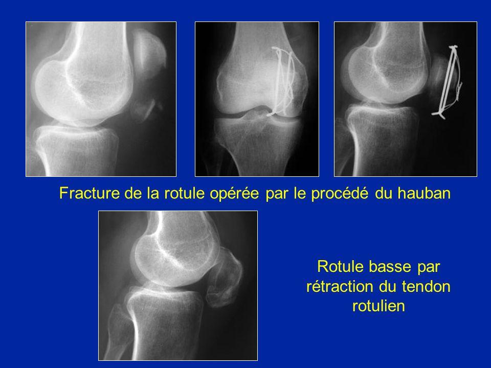 Fracture de la rotule opérée par le procédé du hauban