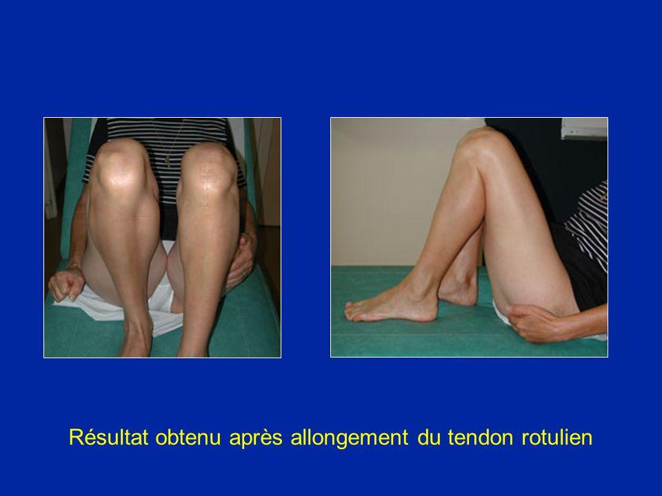 Résultat obtenu après allongement du tendon rotulien