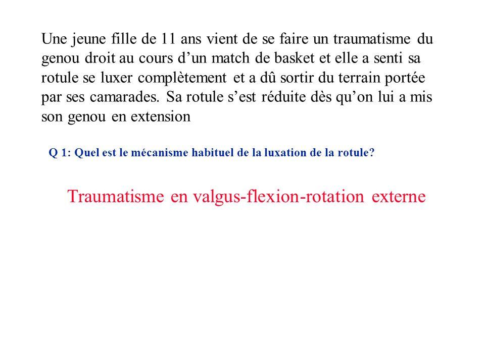 Traumatisme en valgus-flexion-rotation externe