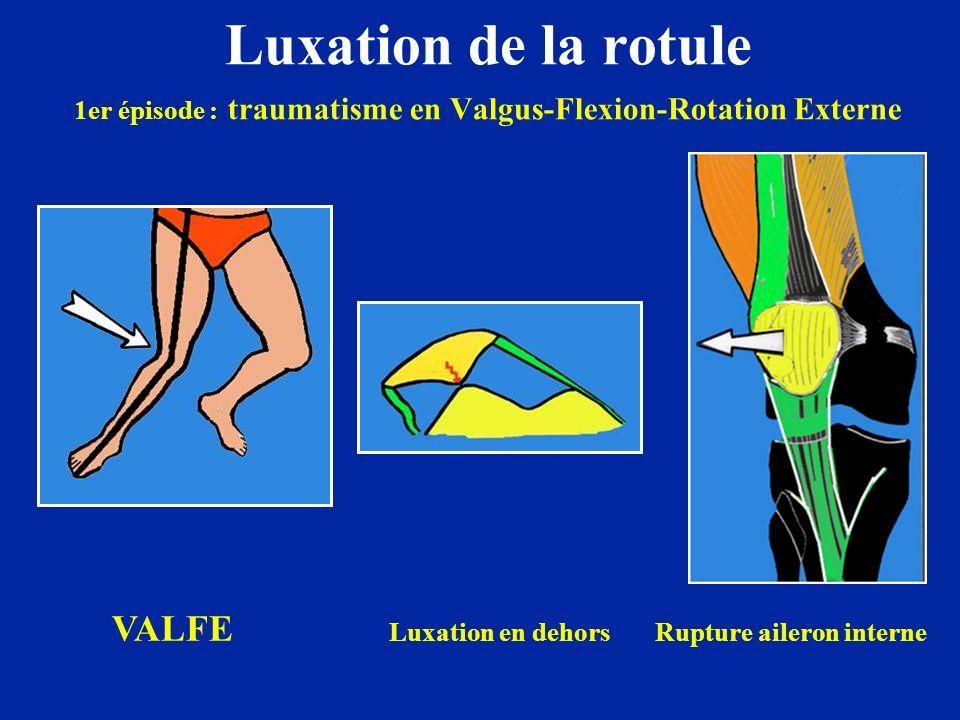 Luxation de la rotule 1er épisode : traumatisme en Valgus-Flexion-Rotation Externe