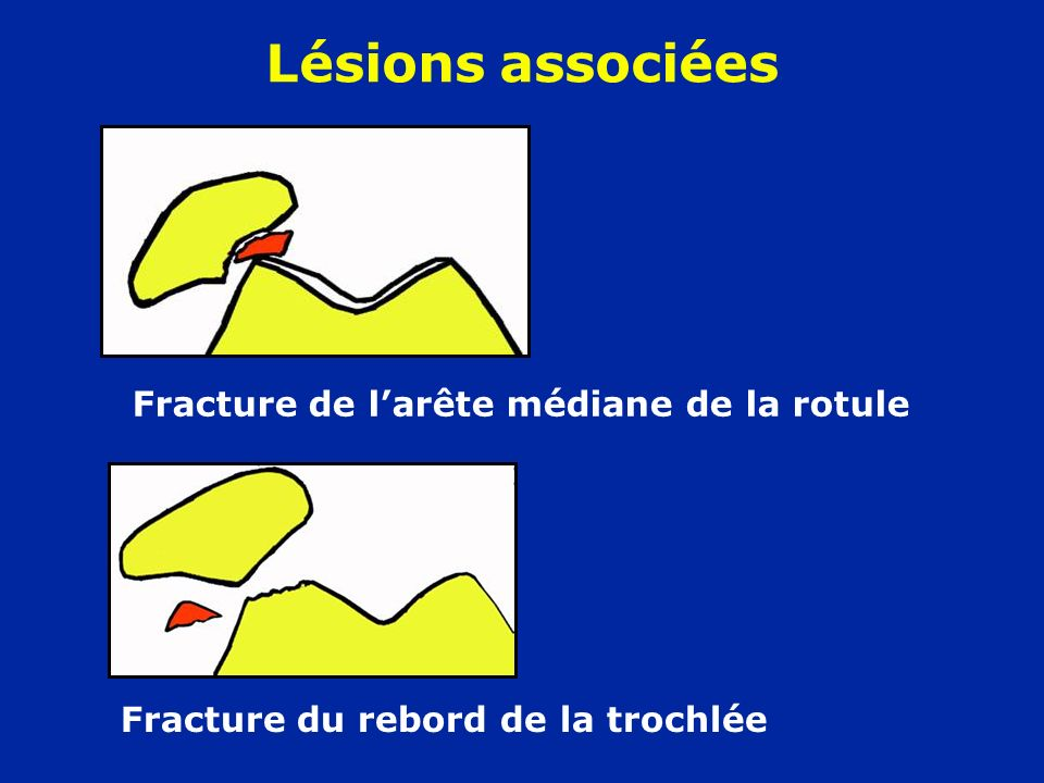 Fracture de l'arête médiane de la rotule