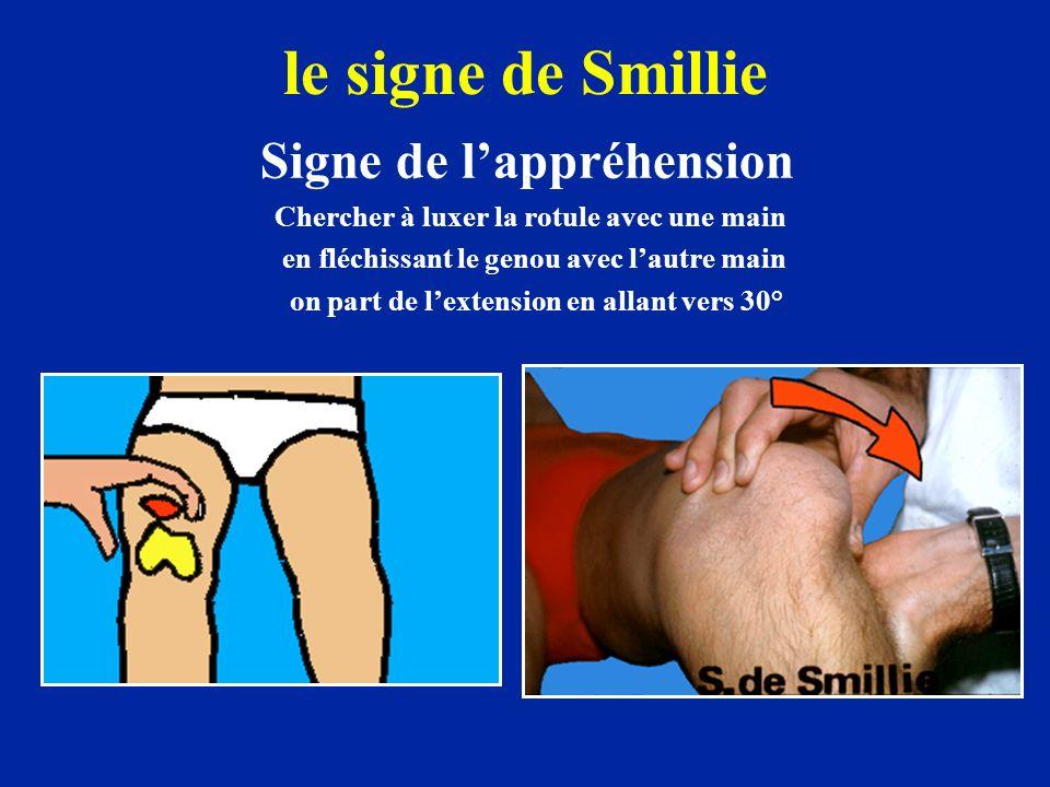 le signe de Smillie Signe de l'appréhension