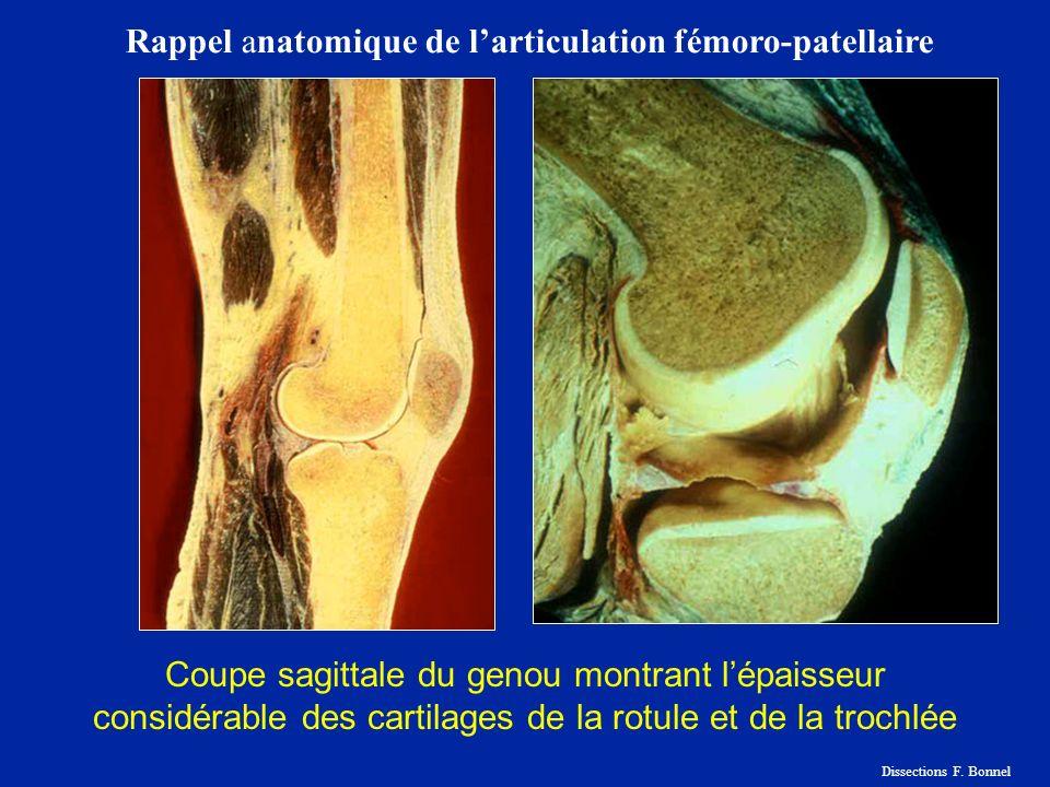 Rappel anatomique de l'articulation fémoro-patellaire