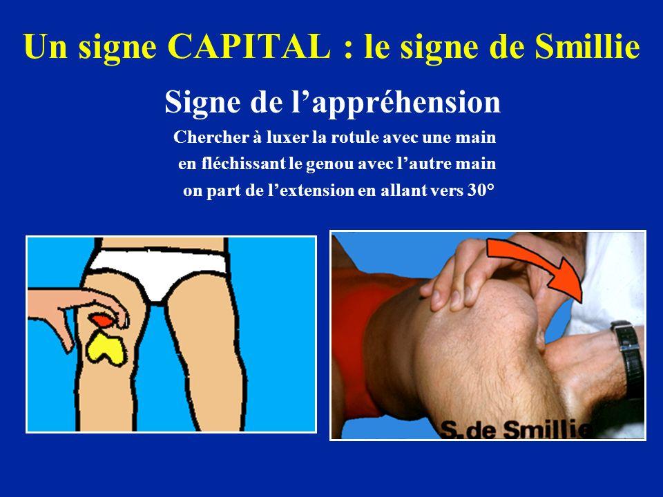 Un signe CAPITAL : le signe de Smillie