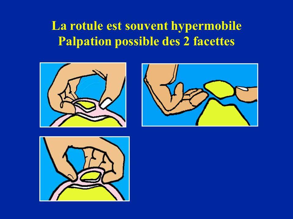 La rotule est souvent hypermobile Palpation possible des 2 facettes