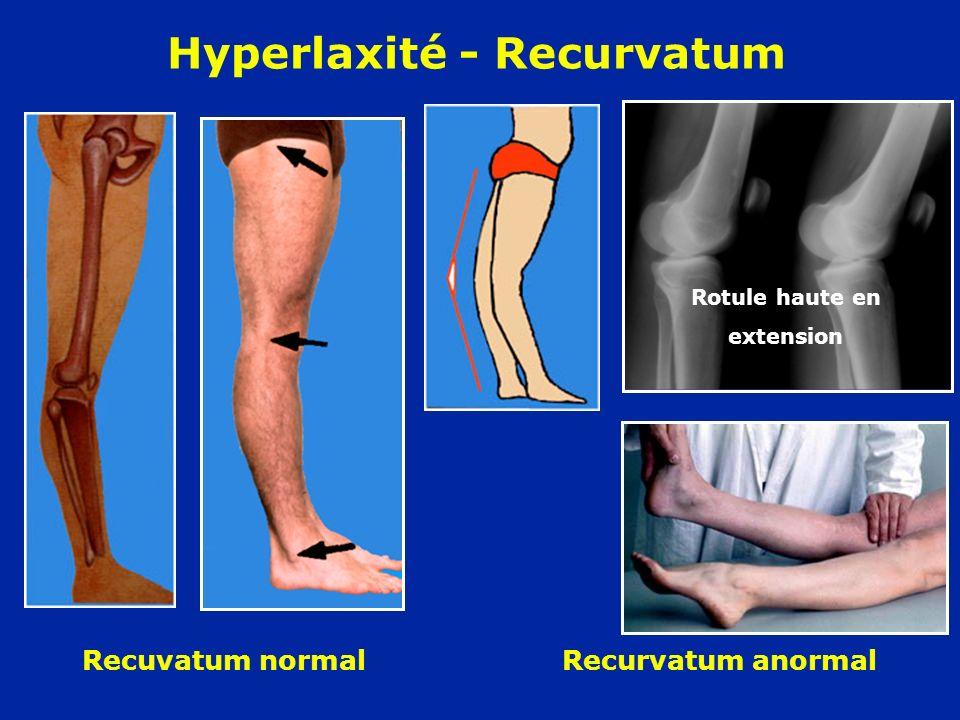 Hyperlaxité - Recurvatum