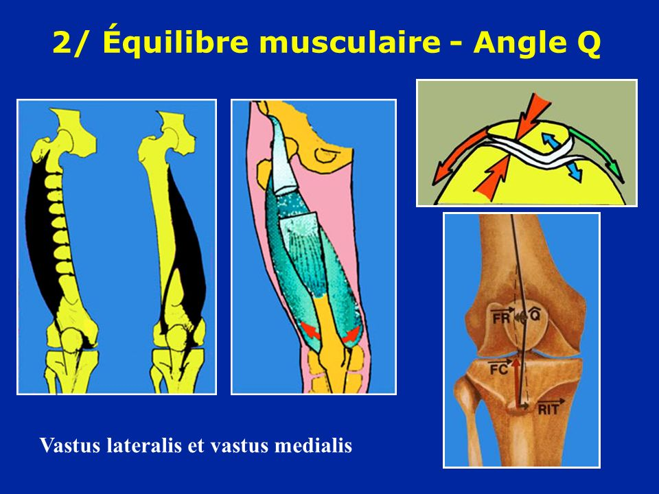 2/ Équilibre musculaire - Angle Q
