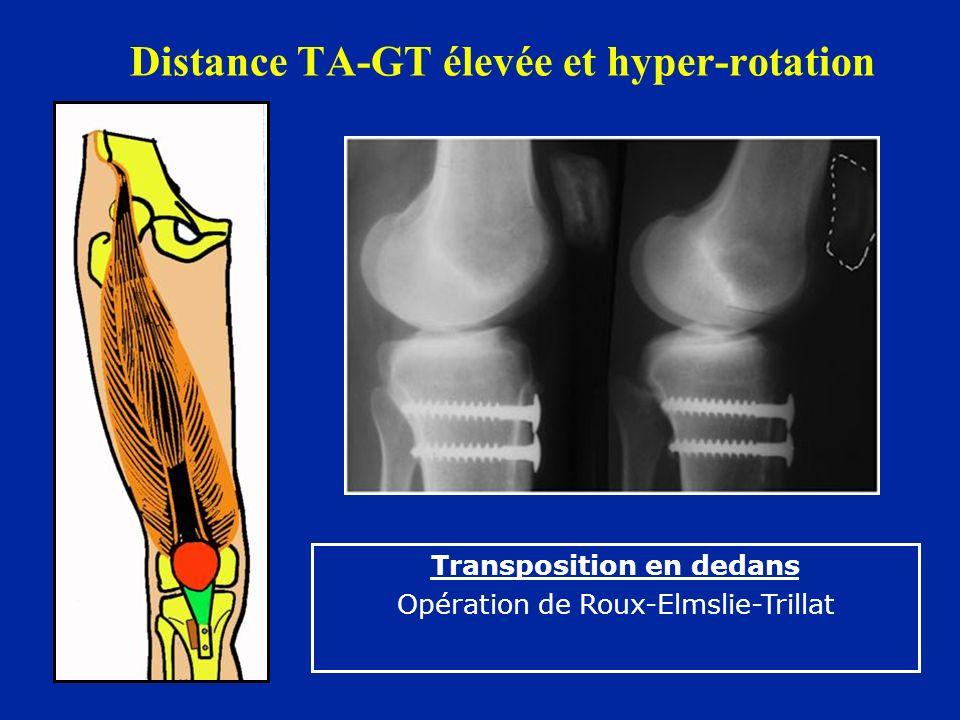 Distance TA-GT élevée et hyper-rotation