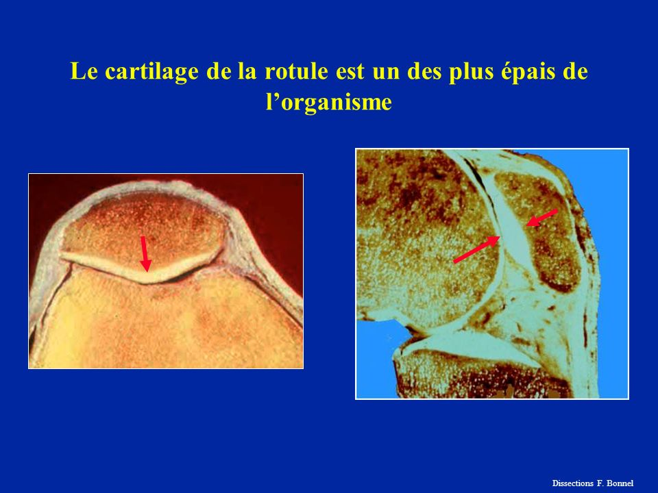 Le cartilage de la rotule est un des plus épais de l'organisme