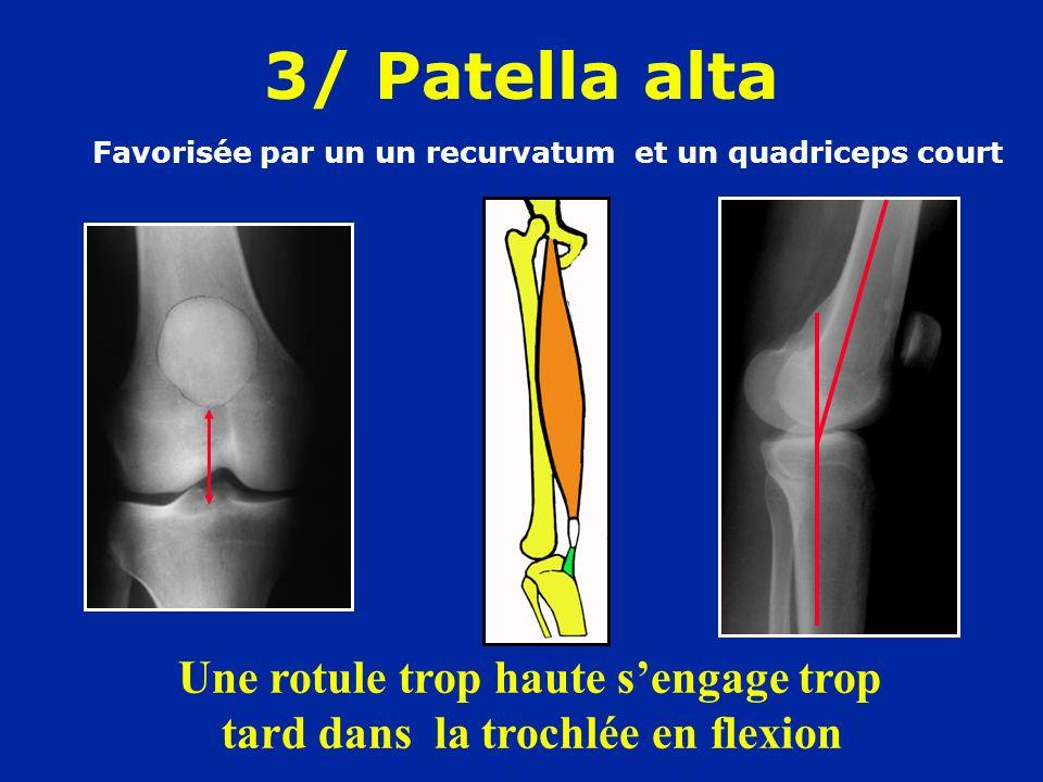 3/ Patella alta Favorisée par un un recurvatum et un quadriceps court.