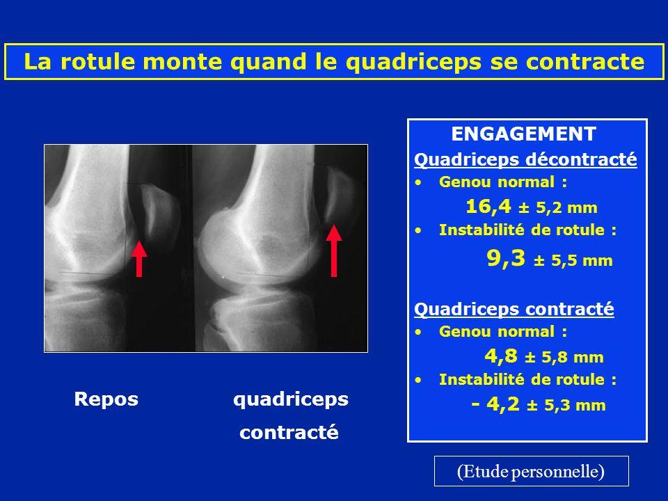 La rotule monte quand le quadriceps se contracte