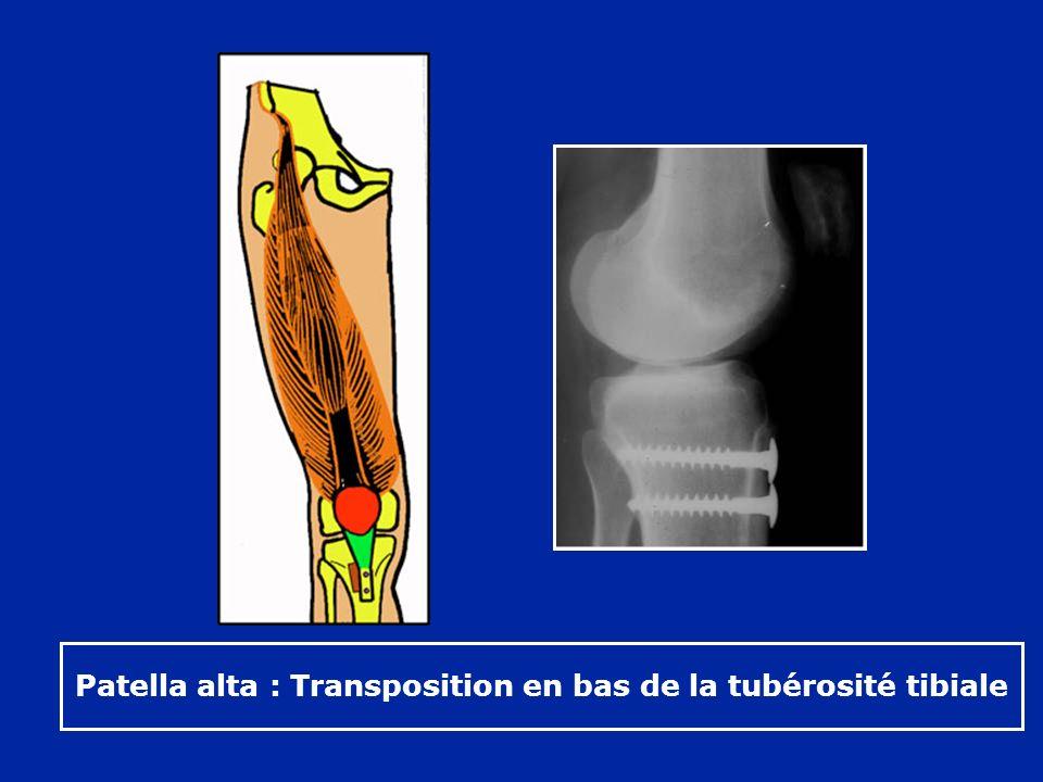 Patella alta : Transposition en bas de la tubérosité tibiale
