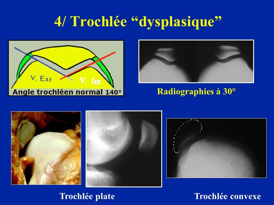 4/ Trochlée dysplasique