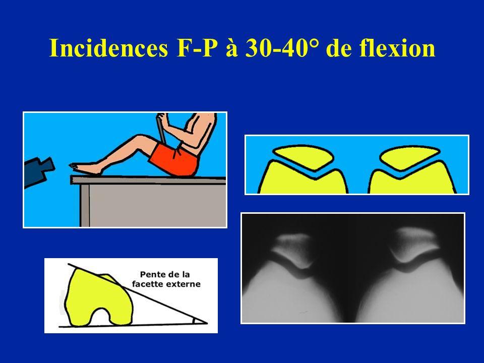 Incidences F-P à 30-40° de flexion