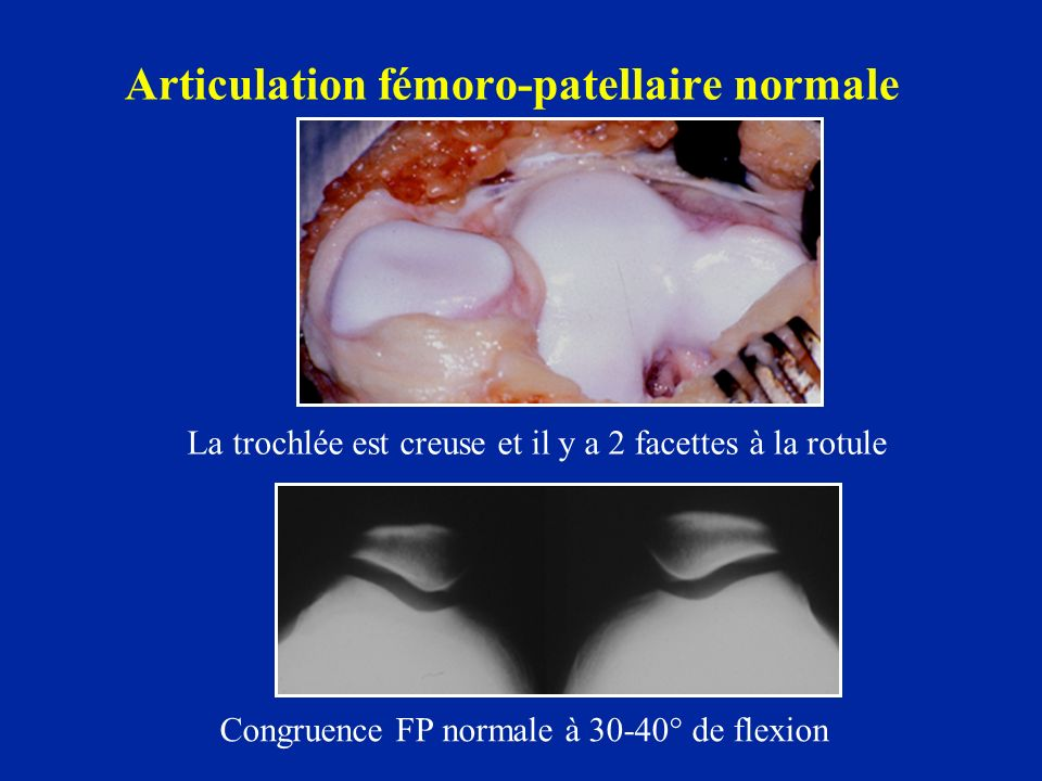 Articulation fémoro-patellaire normale