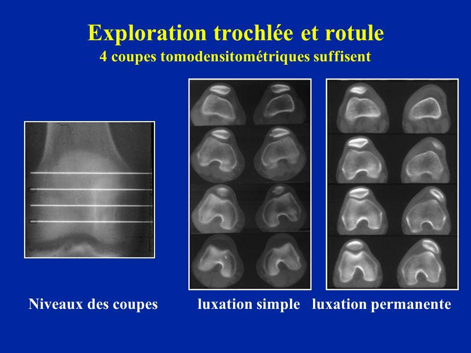 Exploration trochlée et rotule 4 coupes tomodensitométriques suffisent