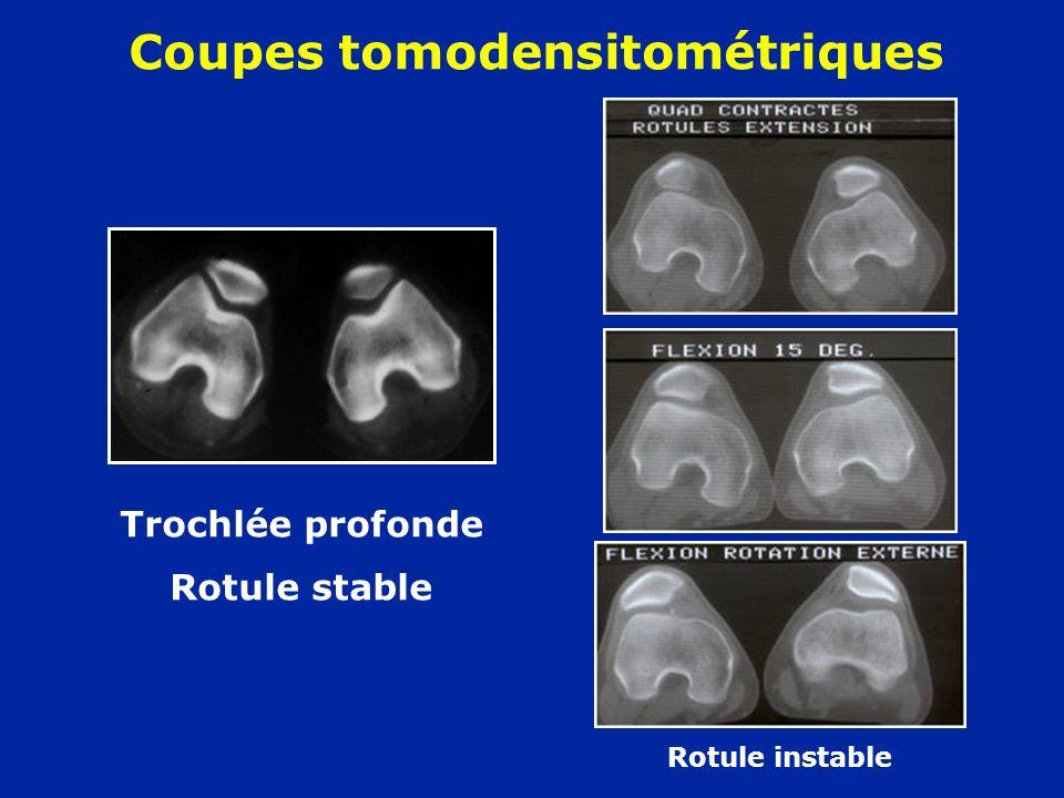 Coupes tomodensitométriques