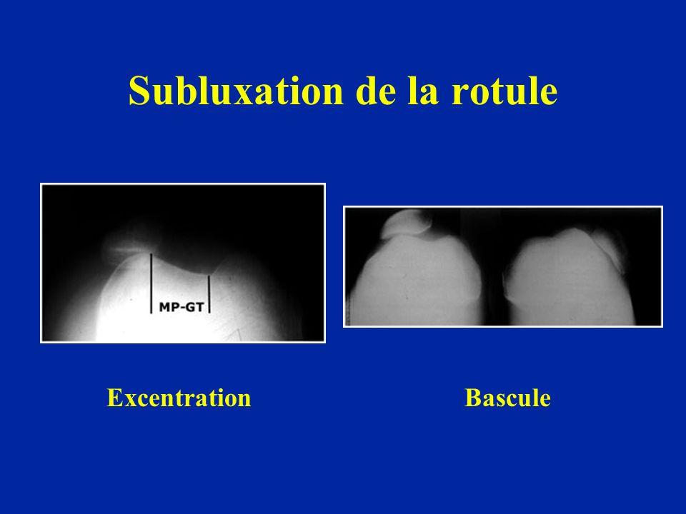 Subluxation de la rotule