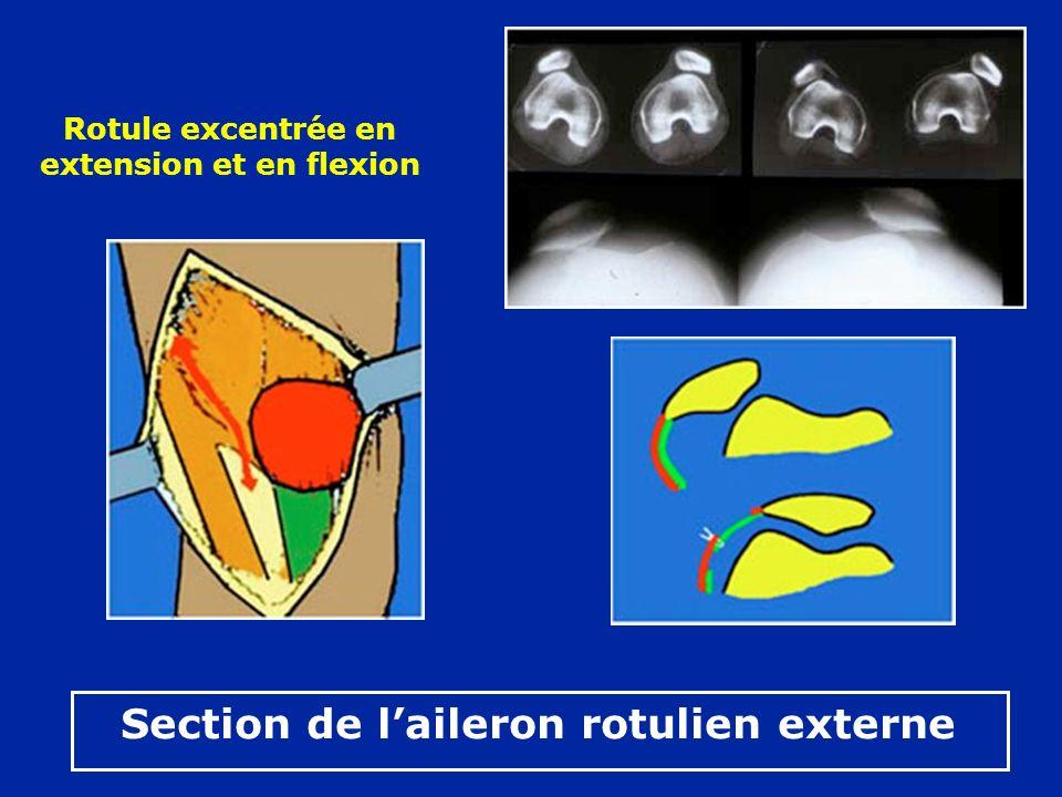 Rotule excentrée en extension et en flexion