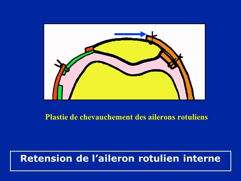 Retension de l'aileron rotulien interne