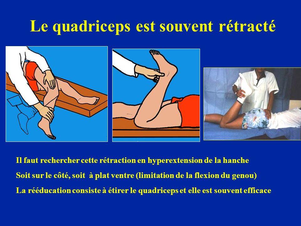 Le quadriceps est souvent rétracté