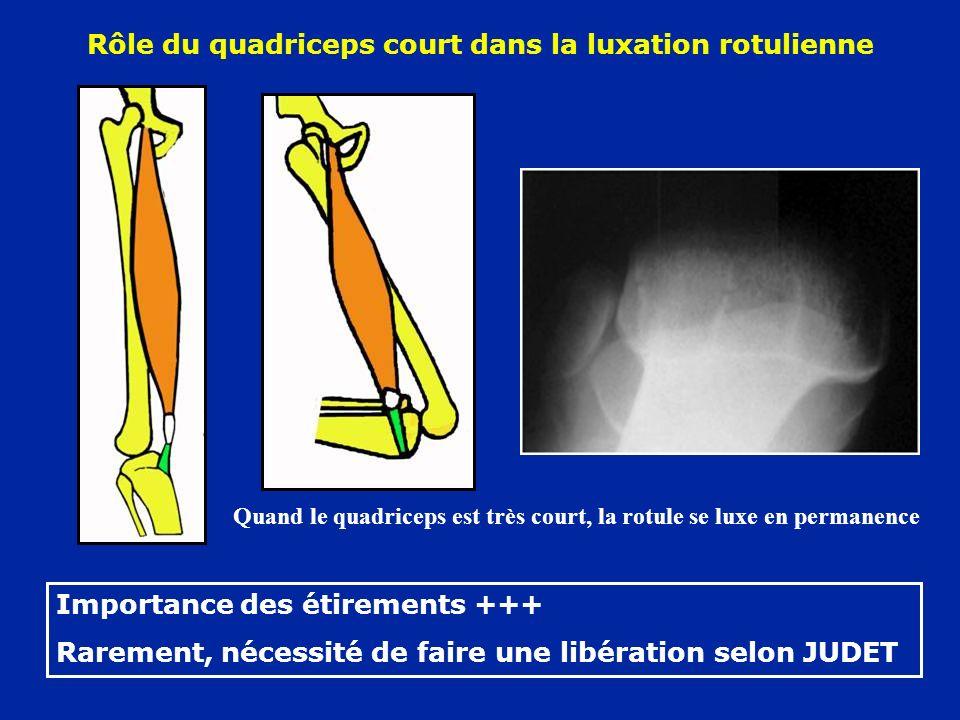 Rôle du quadriceps court dans la luxation rotulienne