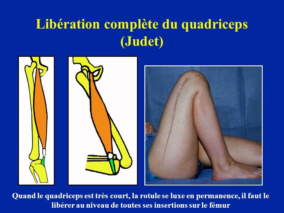 Libération complète du quadriceps (Judet)