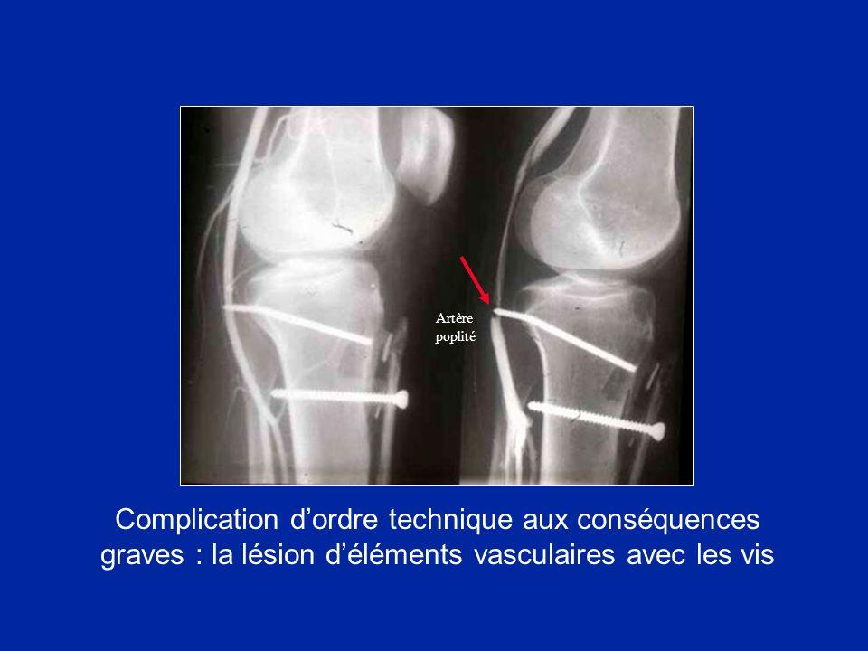 Artère poplité Complication d'ordre technique aux conséquences graves : la lésion d'éléments vasculaires avec les vis.