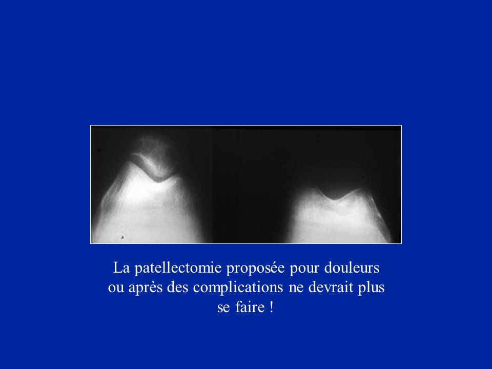 La patellectomie proposée pour douleurs ou après des complications ne devrait plus se faire !