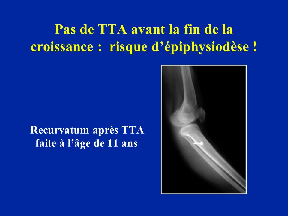 Pas de TTA avant la fin de la croissance : risque d'épiphysiodèse !