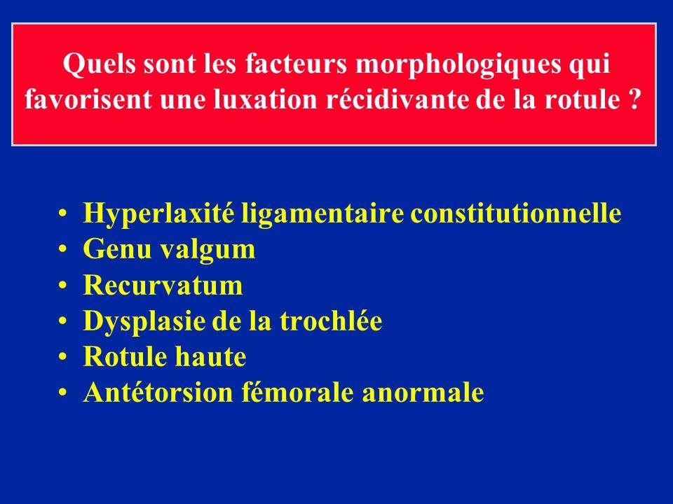 Hyperlaxité ligamentaire constitutionnelle Genu valgum Recurvatum