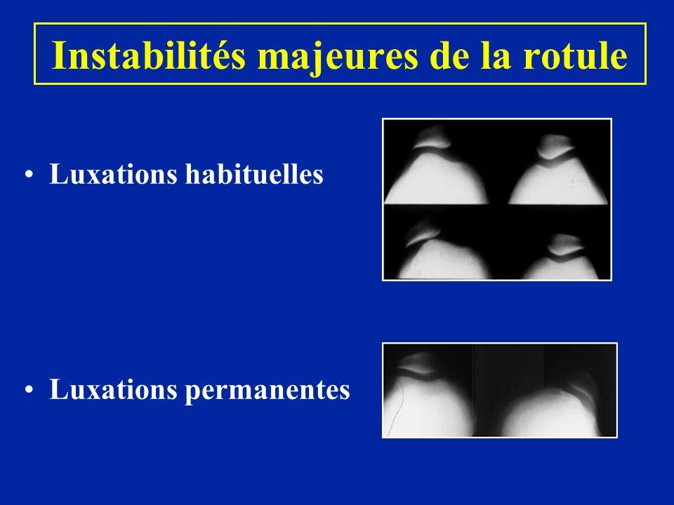 Instabilités majeures de la rotule