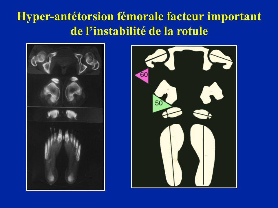 Hyper-antétorsion fémorale facteur important de l'instabilité de la rotule