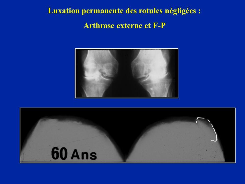 Luxation permanente des rotules négligées : Arthrose externe et F-P