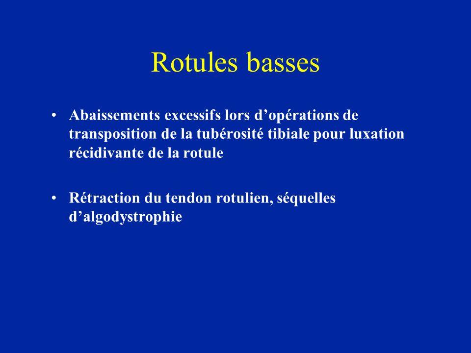 Rotules basses Abaissements excessifs lors d'opérations de transposition de la tubérosité tibiale pour luxation récidivante de la rotule.