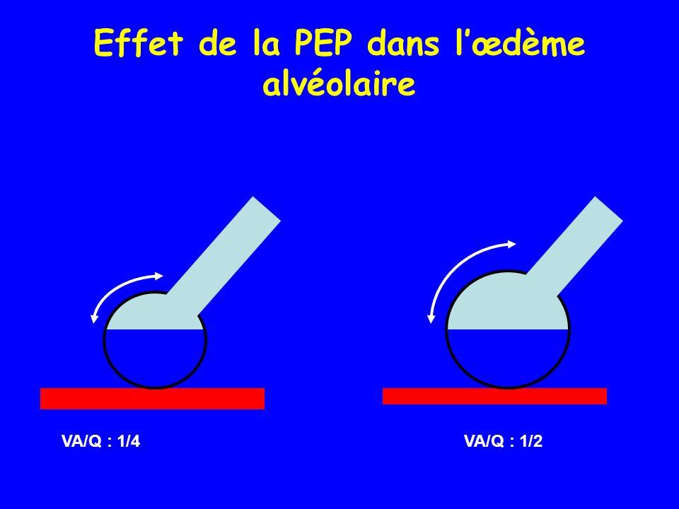 Effet de la PEP dans l'œdème alvéolaire