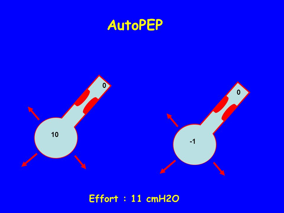 AutoPEP 10 -1 Effort : 11 cmH2O