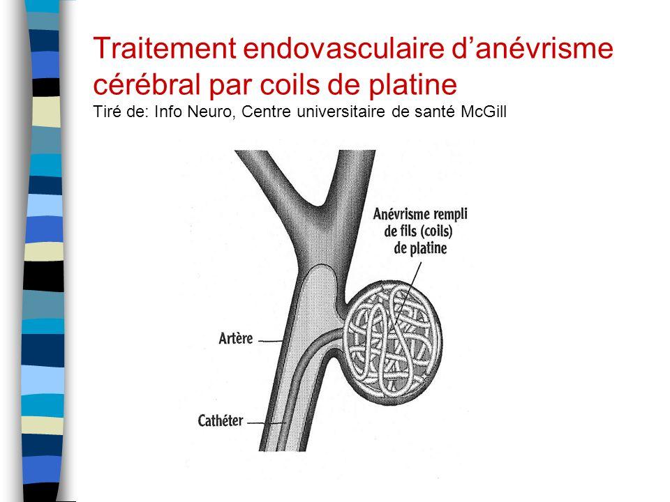Traitement endovasculaire d'anévrisme cérébral par coils de platine Tiré de: Info Neuro, Centre universitaire de santé McGill