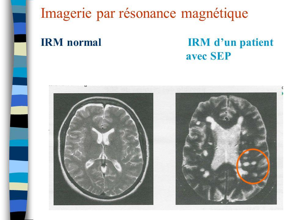 Imagerie par résonance magnétique IRM normal IRM d'un patient avec SEP