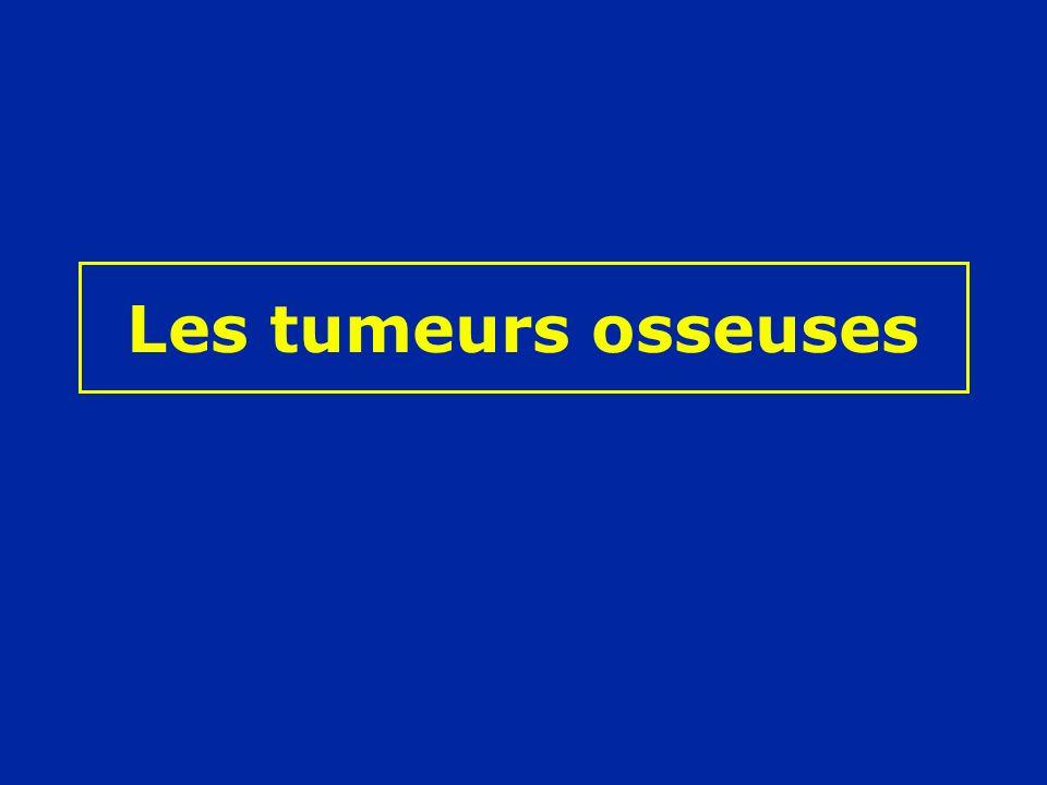 Les tumeurs osseuses