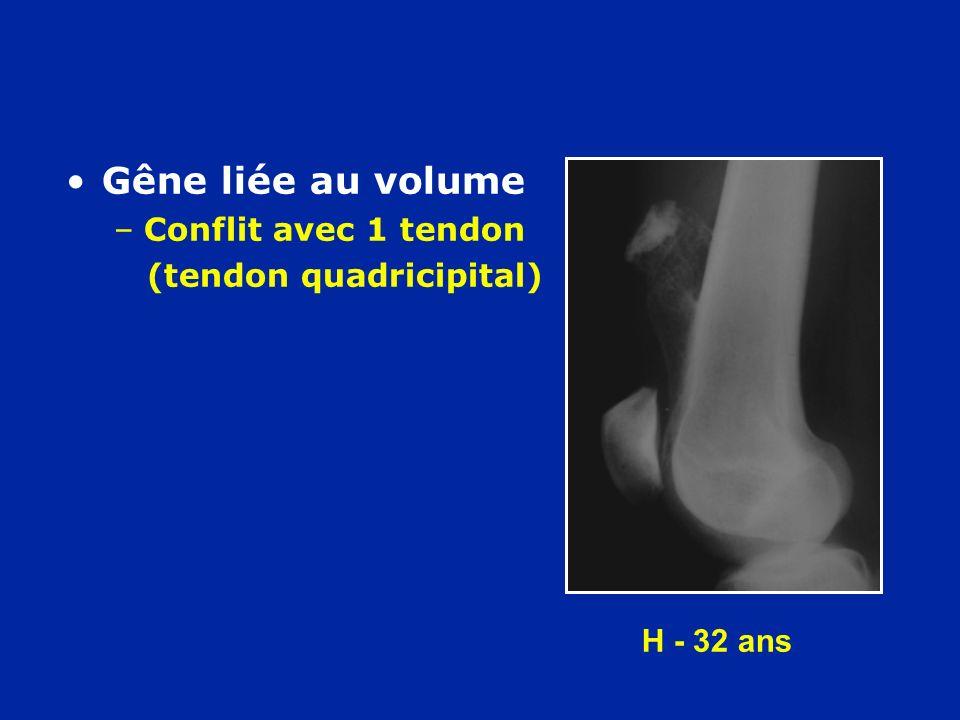 Gêne liée au volume Conflit avec 1 tendon (tendon quadricipital)