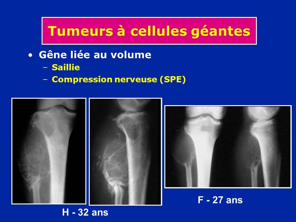 Tumeurs à cellules géantes