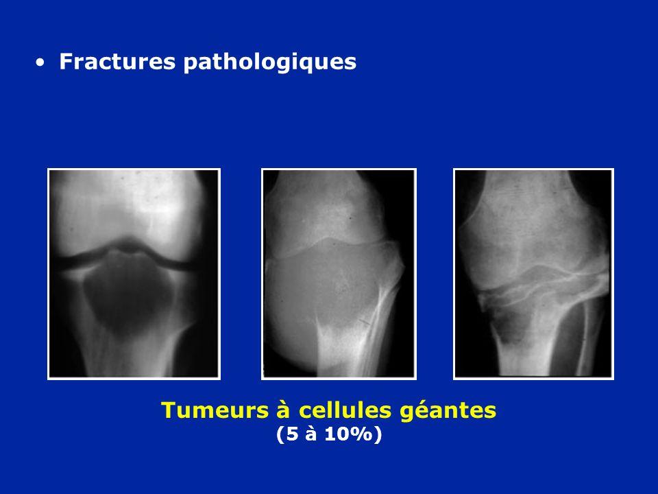 Tumeurs à cellules géantes (5 à 10%)