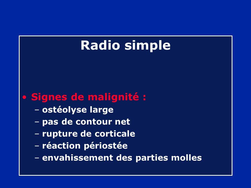Radio simple Signes de malignité : ostéolyse large pas de contour net