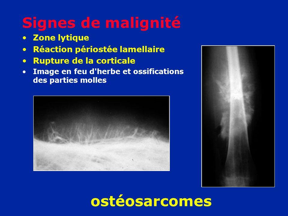 Signes de malignité ostéosarcomes Zone lytique